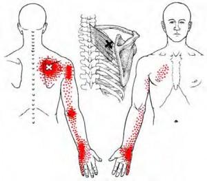 arm pain-trigger