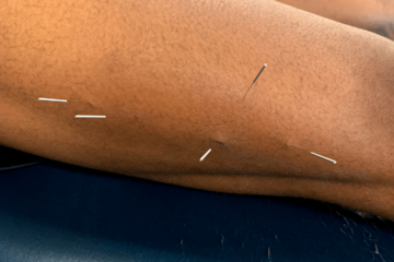 Dry Needling Chandler Physical Therapy